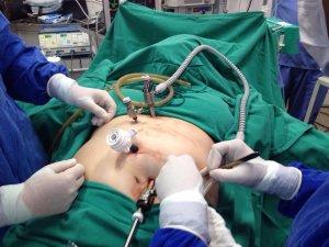 Cirurgia bariátrica por videolaparoscopia: técnica é moderna, menos invasiva e mais confortável para o paciente.