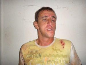 """Marcelo Martins Severiano, vulgo """"Batoré"""" foi preso após dar um soco em rosto de jovem."""